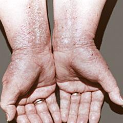 Атопический дерматит у детей на пальцах рук фото